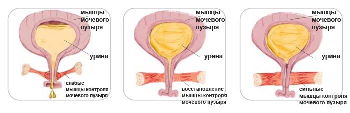 uprazhneniya-kegelya-dlya-dostizheniya-orgazma